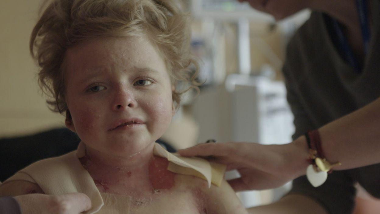 Siedmioletnia Zuzia cierpi na rzadką nieuleczalną chorobę genetyczną – EB (fot. materiały prasowe)