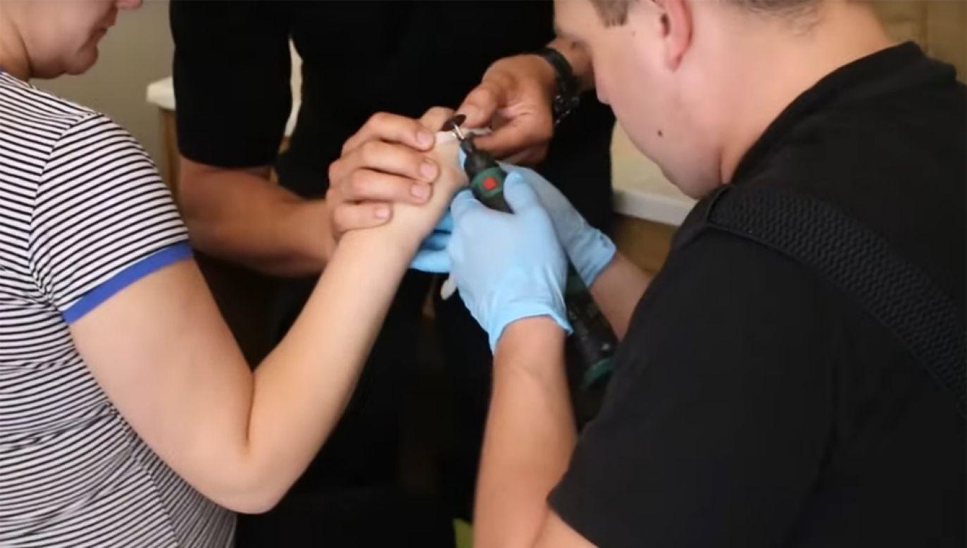 Kobiecie groziła amputacja palca (fot. Serwis Remiza_pl / Youtube)