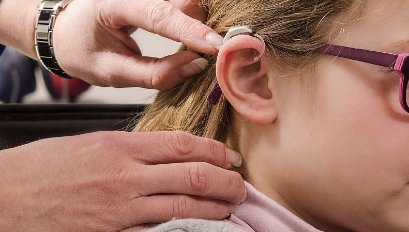 Dziewczynka bez aparatu zupełnie nie słyszy (fot. Universal Images Group via Getty Images)